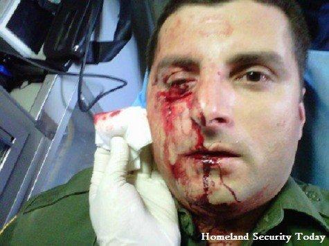 injuredman