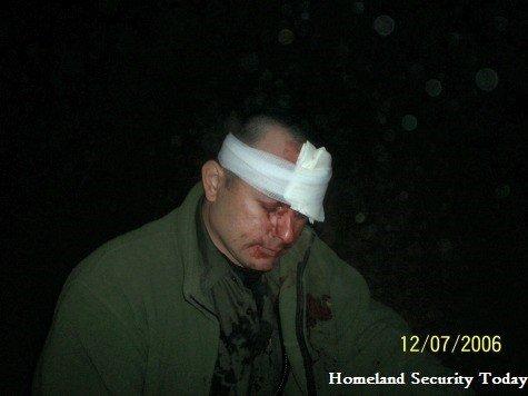 injuredman2